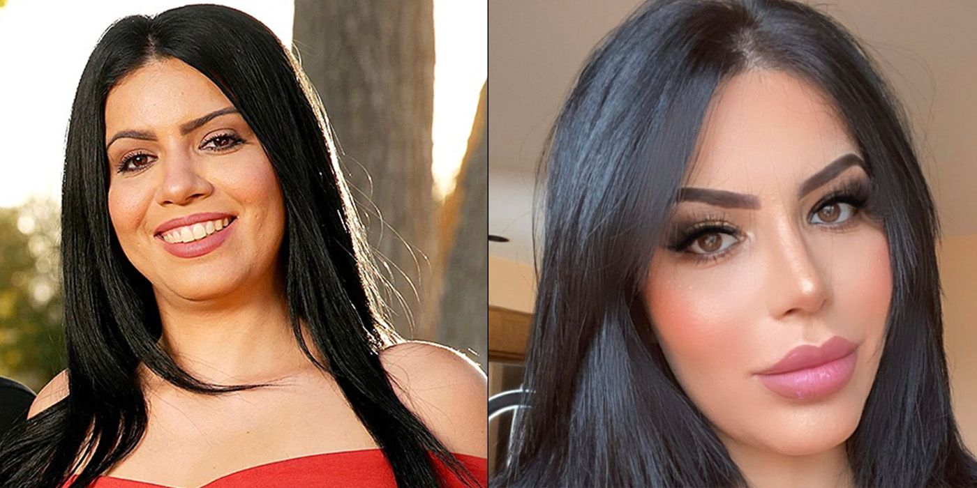 All The Health Risks Larissa Faces From Plastic Surgery