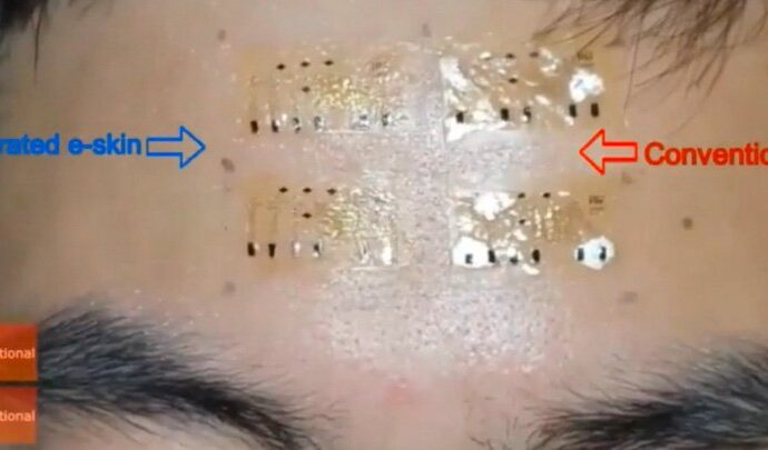 Newly designed e-skin has potential to track skin cancer